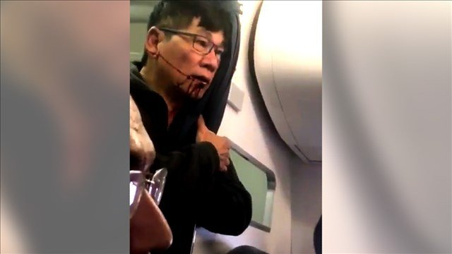 United passenger dragged from plane has concussion, broken nose, says lawyer