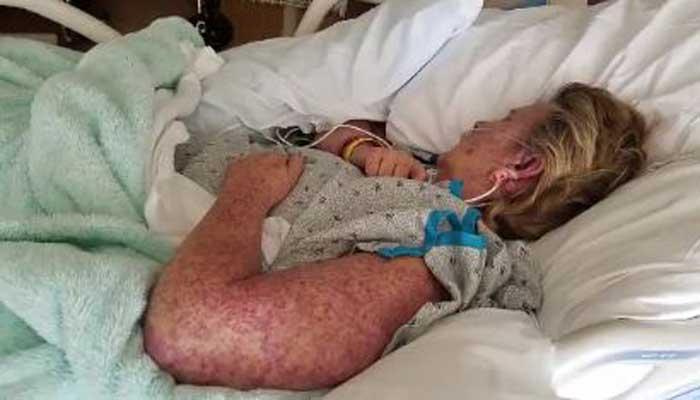 Gansevoort man died after contracting rare tick virus